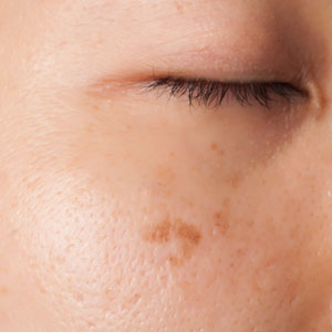 Dark spot formation on Asian skin