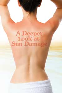 A Deeper Look at Sun Damage