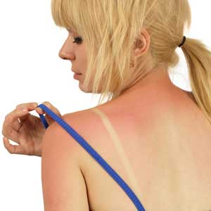 Single-use, Disposable Sunburn Sensor Developed