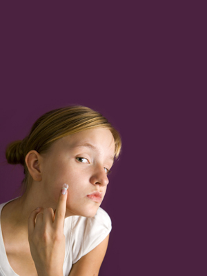 girl applying pimple cream